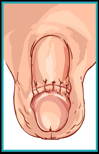 Cirugia de pene guadalajara